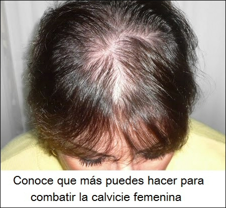 remedios para la calvicie femenina