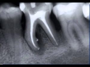 remedios para la enfermedad periodonta
