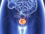 remedios para el cancer de vejiga