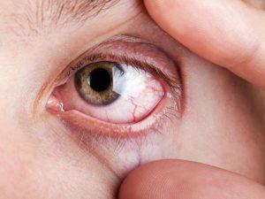 remedios sindrome de sjogren