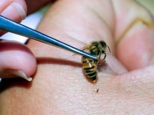 veneno de abeja