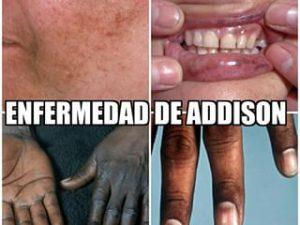 remedios enfermedad de addison