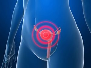 cáncer de utero