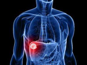 limpieza hepatica