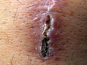 síntomas de deficiencia en zinc