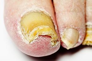 remedios hongos en los pies