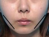 remedios caseros para adelgazar la cara
