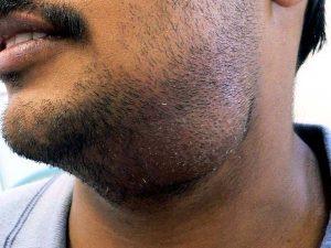 glándula salival inflamada remedio casero