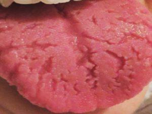 remedios para lengua agrietada
