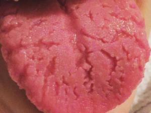 remedios para la lengua agrietada