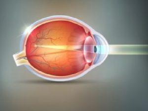 remedios para la miopia