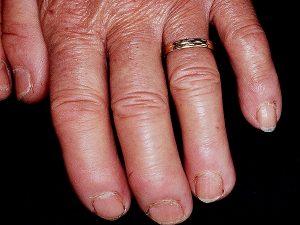 remedios esclerodermia