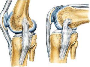 remedios para fortalecer ligamentos