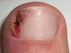 Remedios caseros para uñas encarnadas