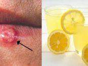 vitaminas y minerales para el herpes labial