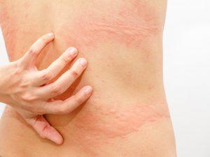 remedios alergia alimentaria