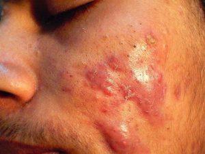 remedios acné quístico