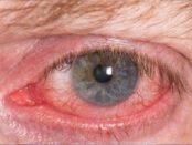 remedios para ojos irritados