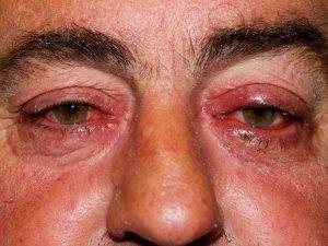remedios para rosacea ocular