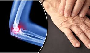 suplementos artritis