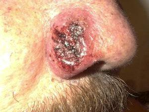 Remedios para la blastomicosis