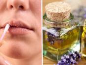 aceites esenciales para el herpes labial