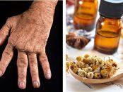aceites esenciales para la artritis