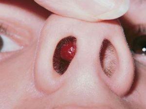 remedios grano en la nariz