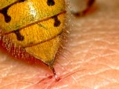 remedios picadura de avispa