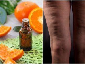 aceites esenciales para la celulitis
