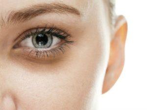 remedios para las ojeras
