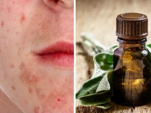 aceites esenciales para el acné