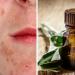 Aceites esenciales para el acne