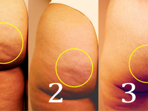 remedios acné glúteos