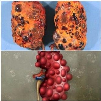 Remedios para quiste en el riñón o quistes renales
