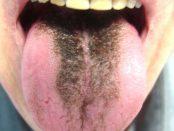 remedios para la lengua negra