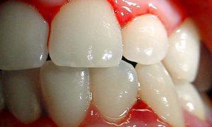 remedios diente flojo