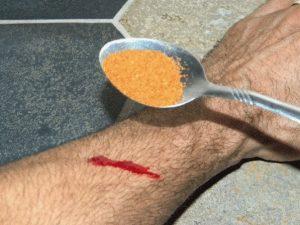 remedios para deterner la sangre de una herida