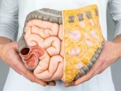 remedios para intestino permeable