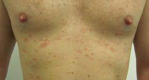 Pitiriasis rosada tratamiento casero