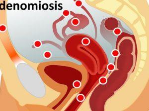 remedios para la adenomiosis