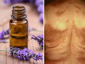 aceites esenciales para la esclerodermia