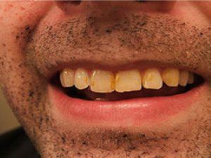 remedios para los dientes manchados