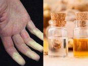 aceites esenciales para la enfermedad de Raynard